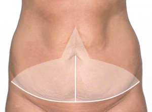abdominoplastyka wycinanie nadmiaru fałdów skórnych i tkanki tłuszczowej szpital gdańsk 1dayclinic trójmiasto gdynia sopot