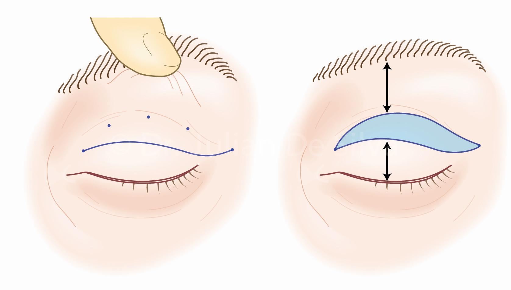 plastyka powiek górnych blefaroplastyka szpita gdańsk 1dayclinic