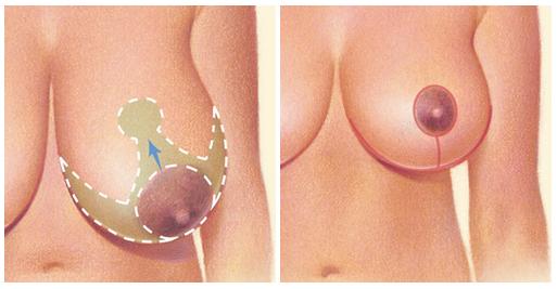 pomniejszenie piersi gigantomatstia szpital gdańsk 1dayclinic