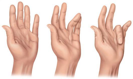 Uwolnienie/plastyka przykurczu palców w chorobie Dupuytrena